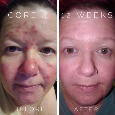 TreSkin-Best-Organic-Aloe-Vera-Skin-Care-Before-and-After-45